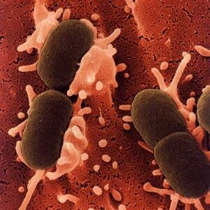 Food Poisoning Signs and Causes 1