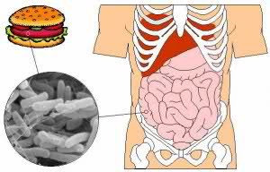Food Poisoning Signs and Causes