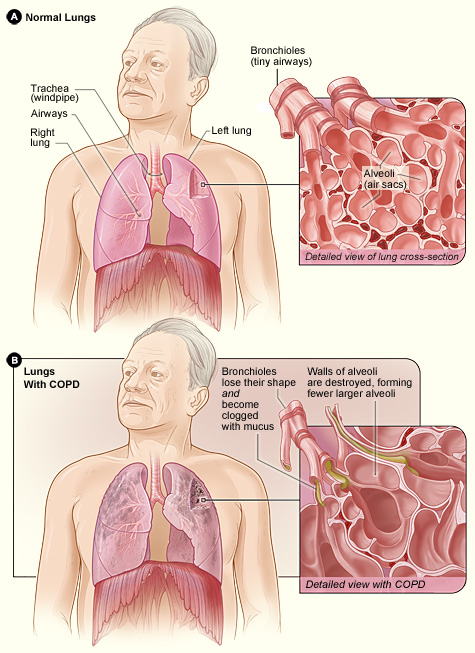 What is COPD Symptoms, Risk Factors, Treatment And Advanced Stages
