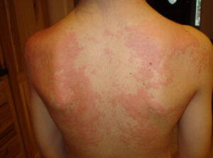 Hives Causes - Triggers of Hives, Symptoms And Treatment (2)