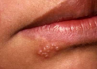 Herpes Simplex 1